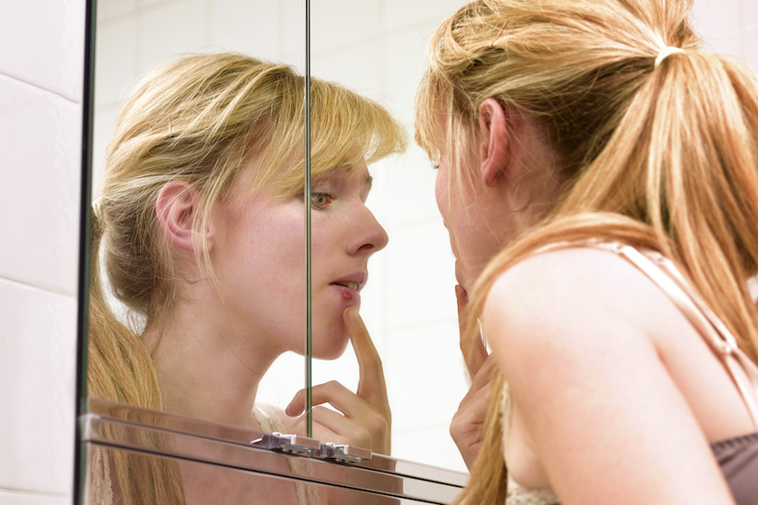 Dit zijn de redenen waarom er soms een puist precies op je lip zit