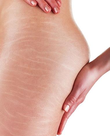 Tips bij striae (groei- zwangerschapsstriemen)