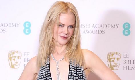 Nicole Kidman vertelt wat er mis was met haar handen tijdens de Oscars