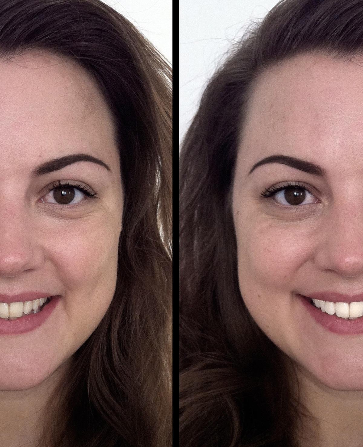 Win een Smile Over-simulatie