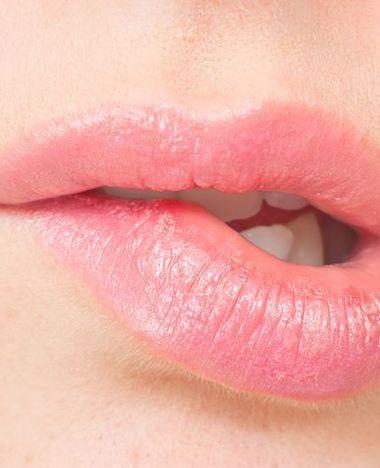 Nooit meer droge lippen!