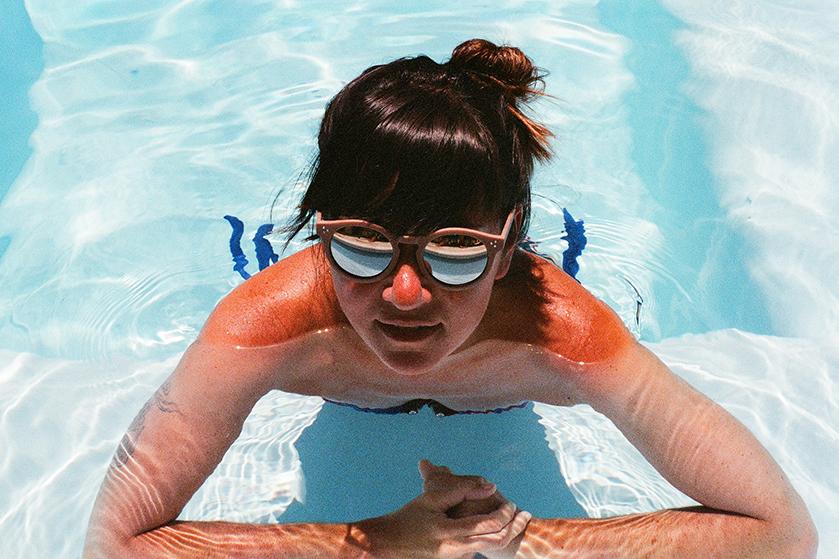 TikTok hack: zó ben je snel van de irritatie van een zonverbrande huid af