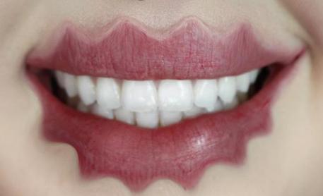 Bizarre beautytrend: de squiggly lip
