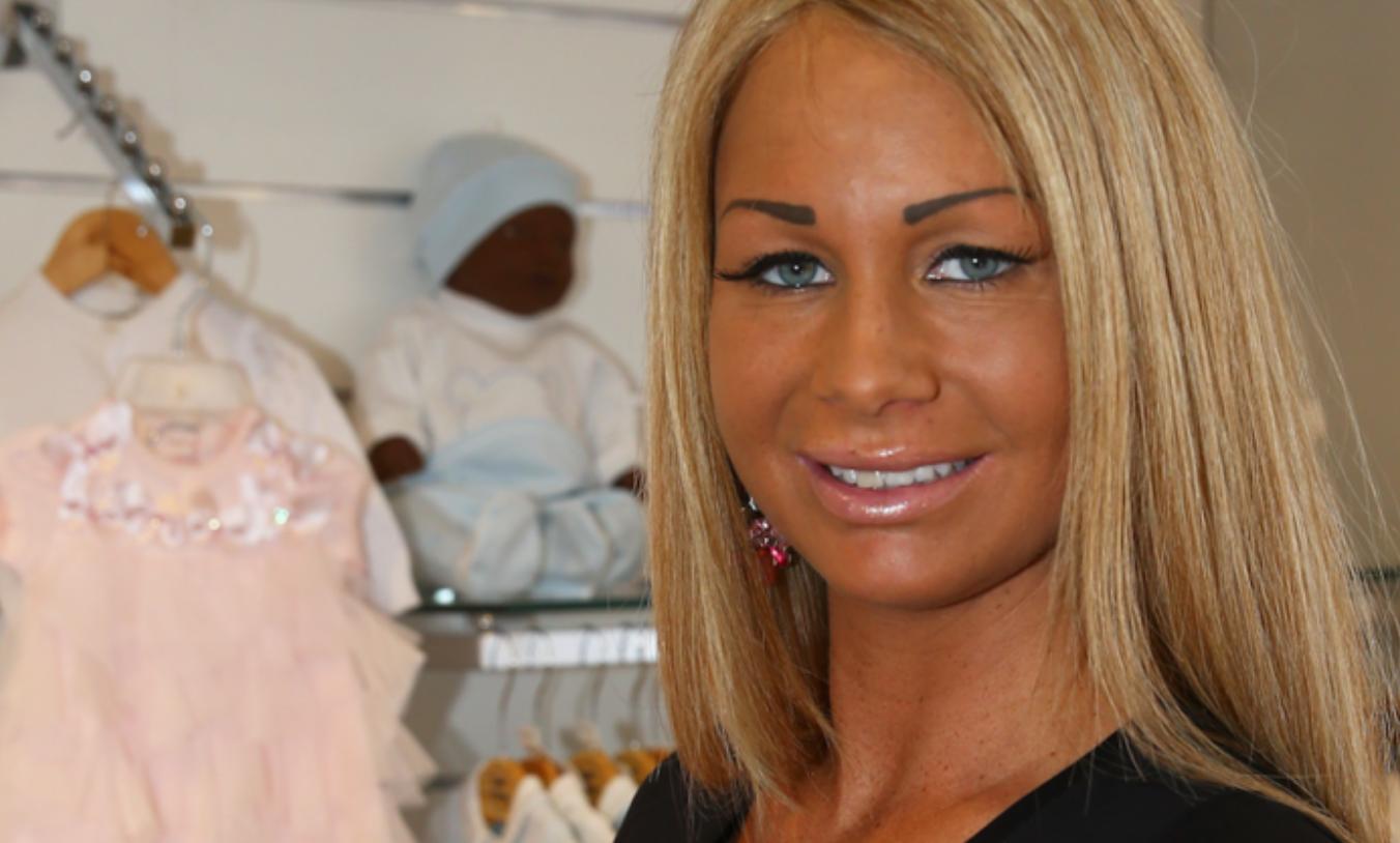 Nieuwe vriend van Barbie heeft zijn lippen laten opspuiten en dit het resultaat