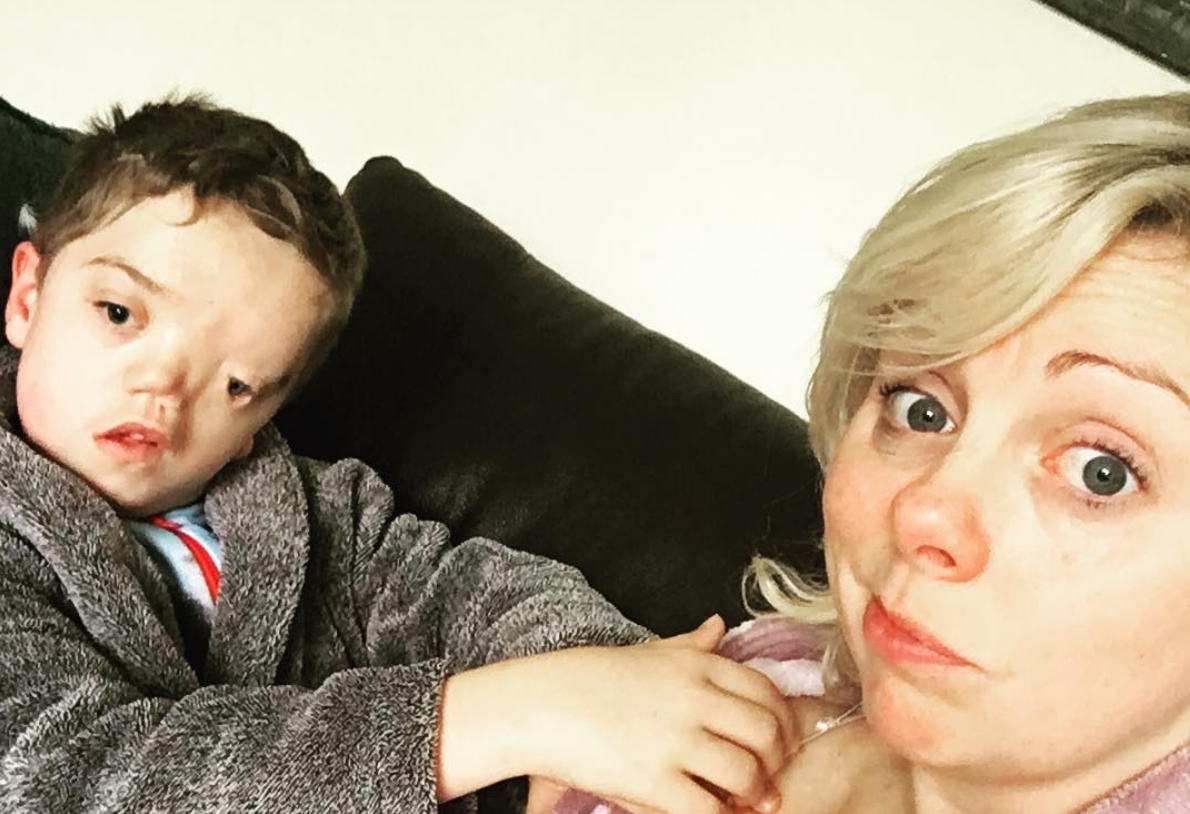 Instagram onder vuur na verwijderen foto van kindje met gezichtsafwijking
