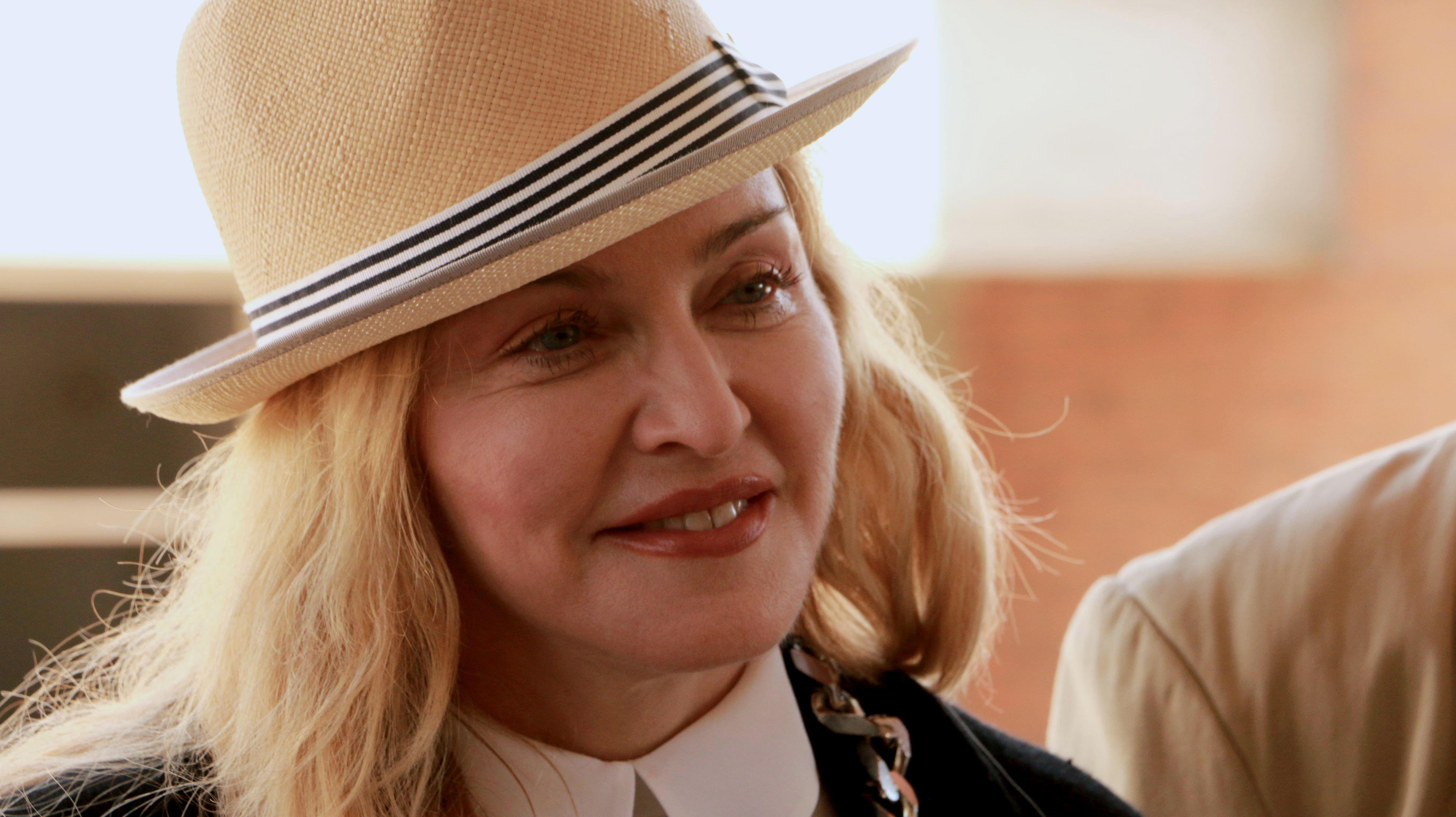 Madonna verjongt… haar handen!?